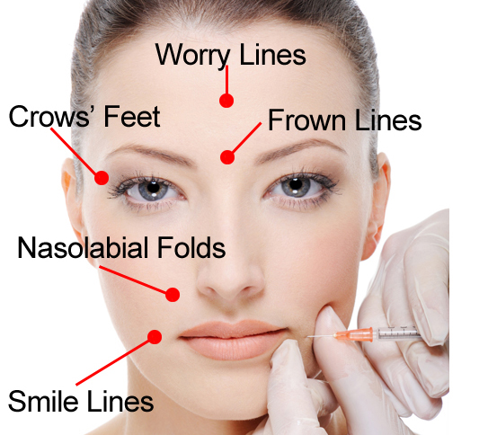 Do You Really Know Botox Let S Talk Beauty And Wellness